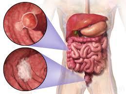سرطان روده | رژیم درمانی در سرطان روده